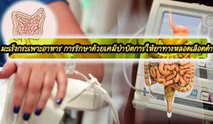 มะเร็งกระเพาะอาหาร การรักษาด้วยเคมีบำบัดการให้ยาทางหลอดเลือดดำ