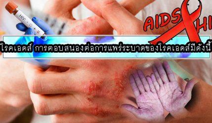 โรคเอดส์ การตอบสนองต่อการแพร่ระบาดของโรคเอดส์มีดังนี้