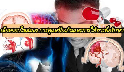 เลือดออกในสมอง การดูแลป้องกันและการใช้ยาเพื่อรักษา
