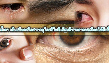 น้ำตา เป็นเลือดหรือสาเหตุโรคฮีโมฟีเลียอธิบายรายละเอียดได้ดังนี้